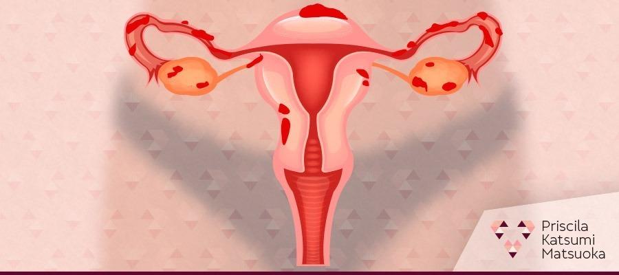 imagem Endometriose engorda?