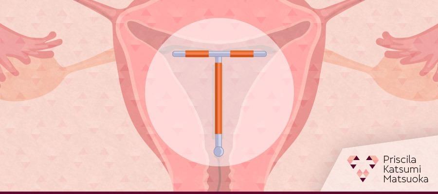 Imagem Descomplicando os métodos contraceptivos: DIU